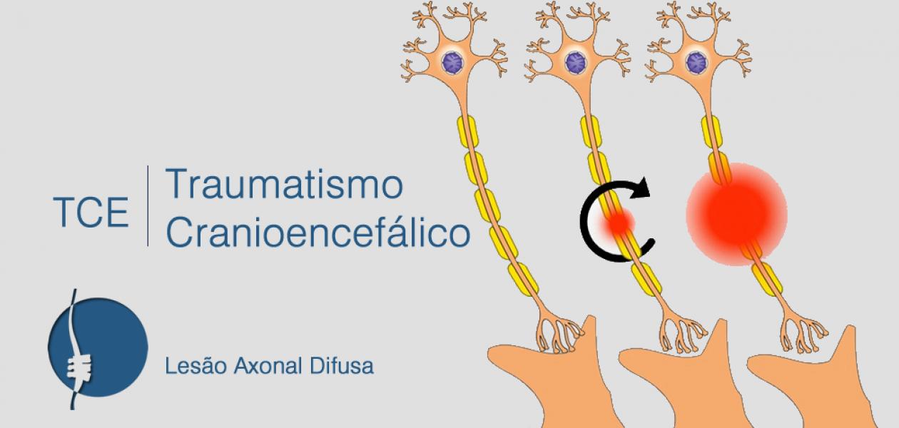 Você sabe o que é lesão axonal difusa?